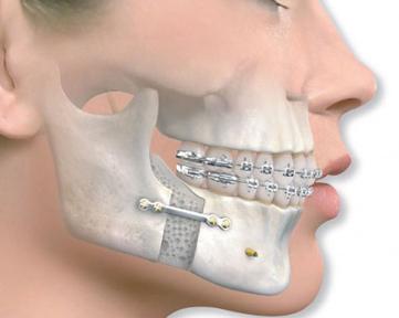 Στοματική και Γναθοπροσωπική Χειρουργική